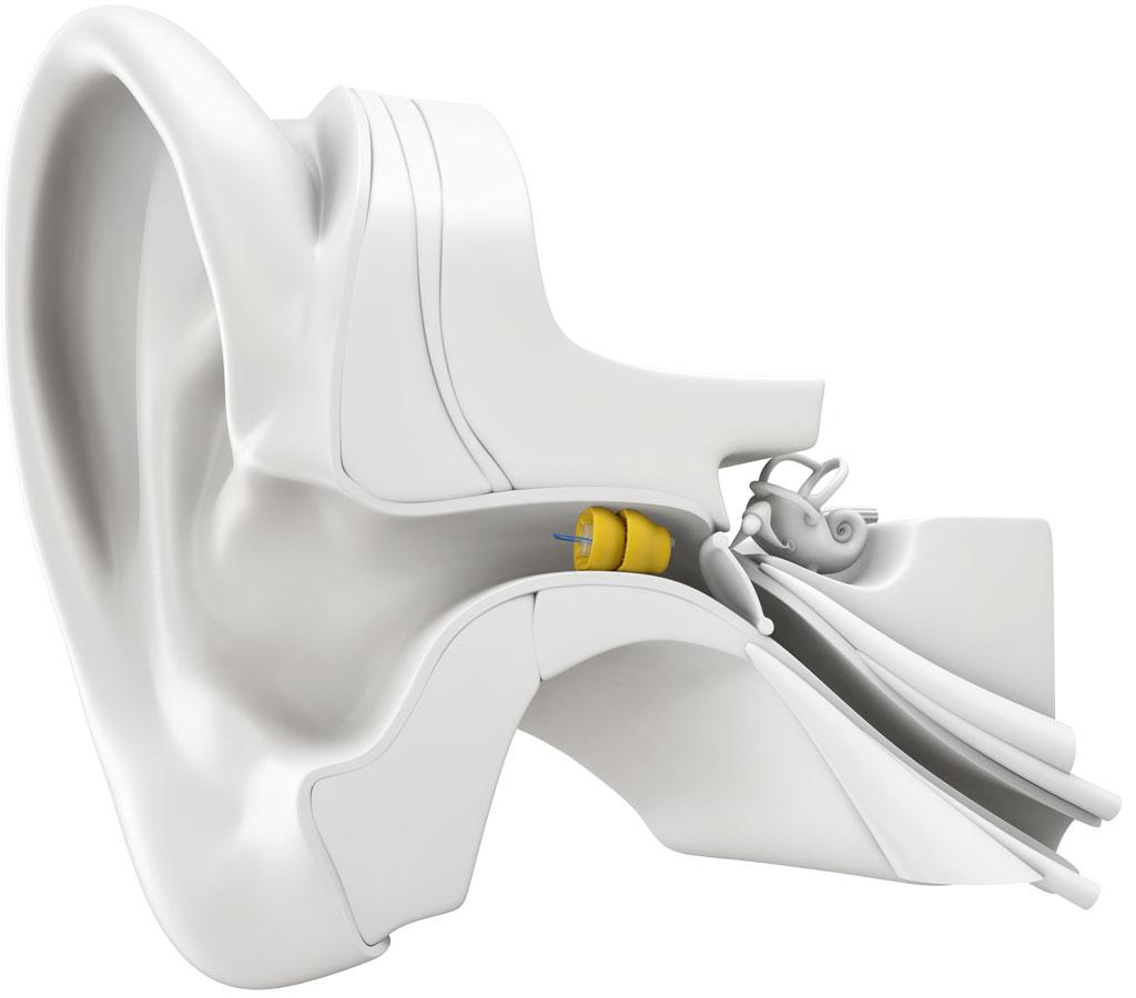 forum hörgeräte